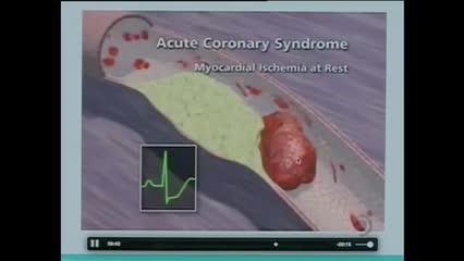O número de infartos chama atenção para doenças cardiovasculares