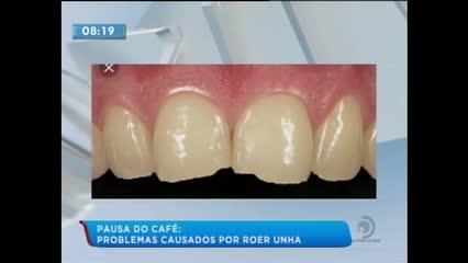 Pausa do Café: Roer unhas é prejudicial aos dentes