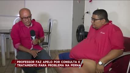 Professor faz apelo por consulta e tratamento para problema na perna